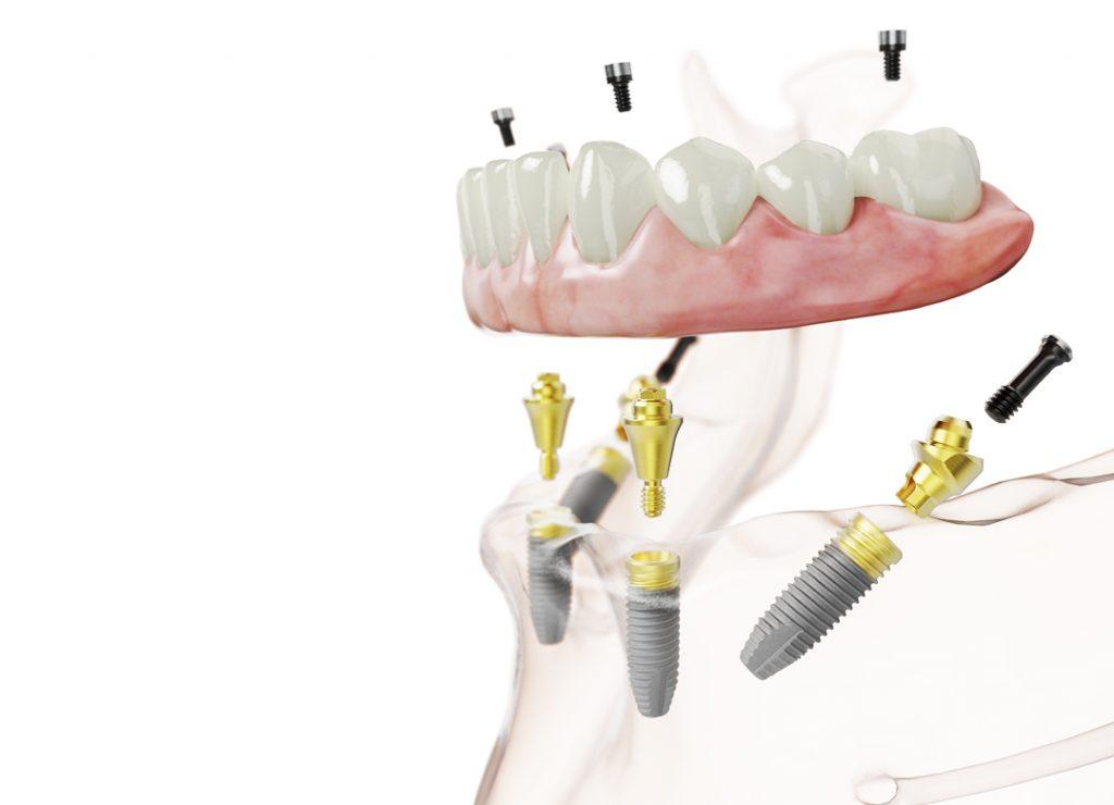 Nobel Biocare All-on-4 fogászati implantáció