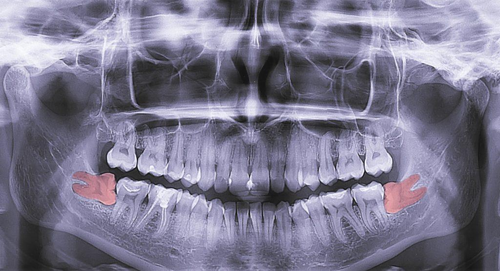Bölcsességfog beszorulása röntgenen
