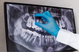 Gyökérkezelés röntgen felvétel